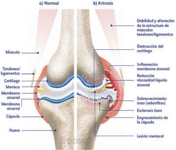 comparison of normal and arthritic knee joints