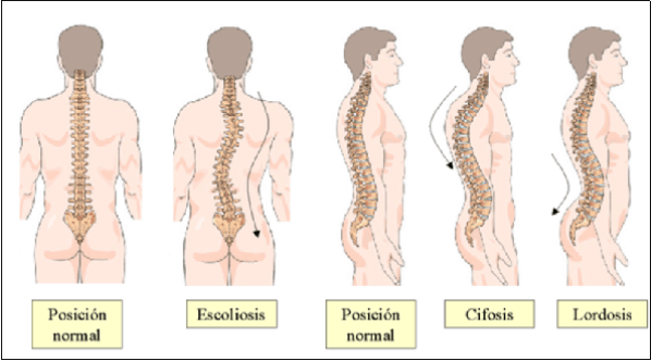 comparison of normal spine to abnormal spines