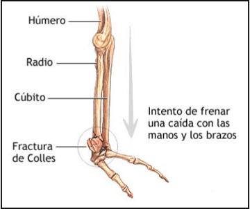 drawing of a colles fracture