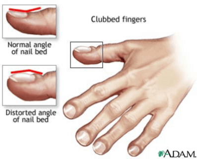 drawing of clubbed fingers