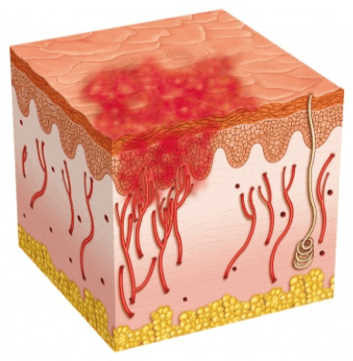 epidermis with red spot