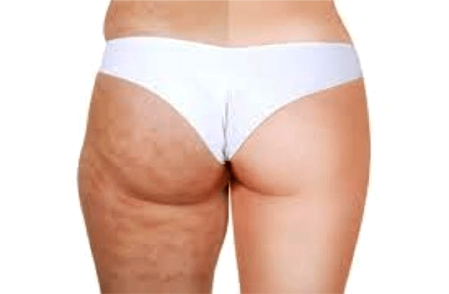 example of cellulite caused dimples on legs