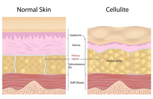 normal skin versus cellulite