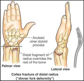 palmar view and lateral view of fracture at wrist