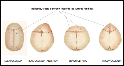 sutures and anomalies of the skull
