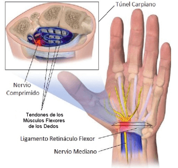 wrist with carpal tunnel syndrome